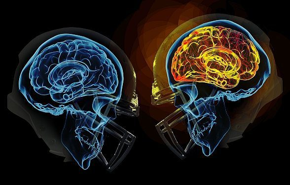 How Cte Chronic Traumatic >> Is Chronic Traumatic Encephalopathy Cte A Compensable